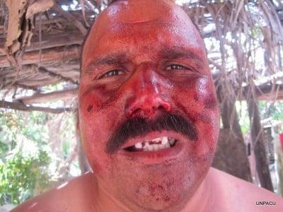 Ramon Escalona after beating, Jan. 2013